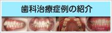 歯科治療症例の紹介