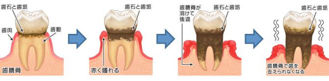 m-shishubyo