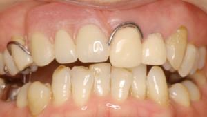 金属バネのあるタイプの入れ歯