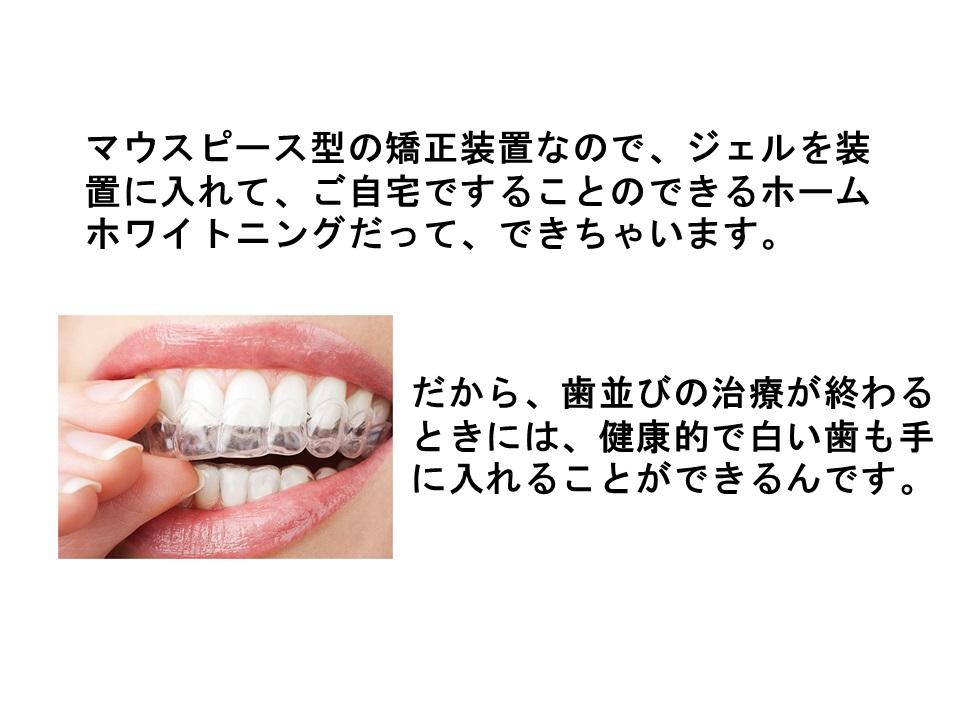 進学後や就職後に人に気づかれずに歯並びの矯正