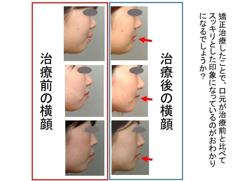 矯正治療前後の口元の変化