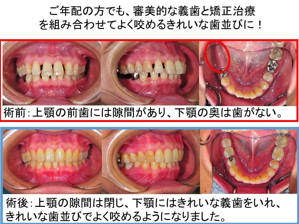 入れ歯と矯正PPT