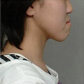 重度の受け口(骨格性下顎前突症)